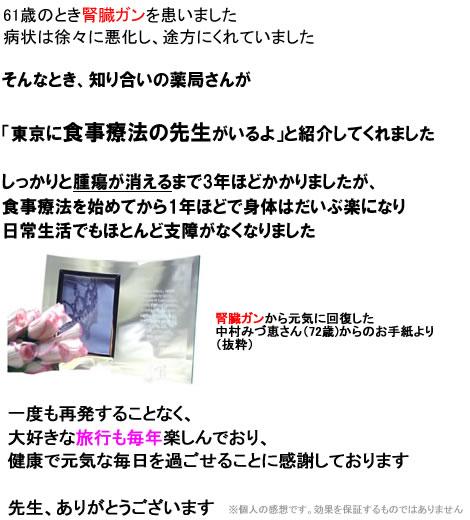 jinzou01.jpg